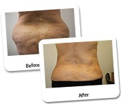 Mega Liposuction Before And After Photos (9)