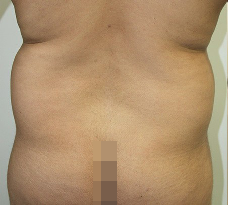 Men Liposuction Before Photo