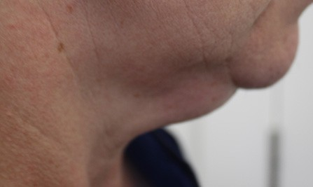 Neck Liposuction Before Photos (12)
