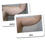 Arm Liposuction For Women