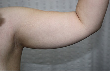 Female Liposuction Before Photo (25)
