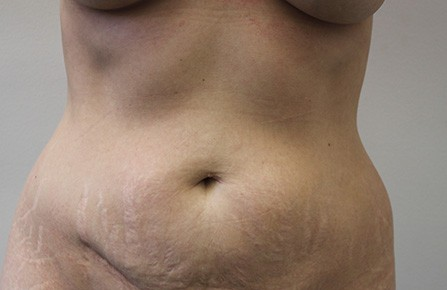 Tummy Tuck Before Photos (8)