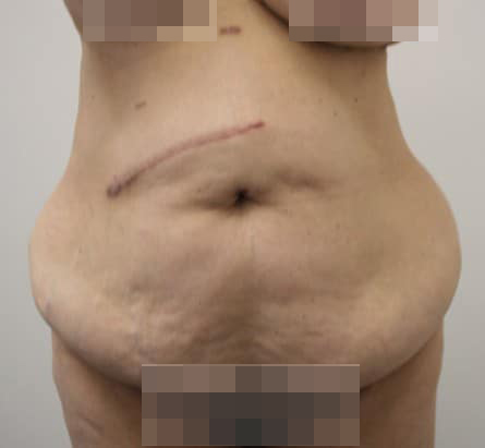 Tummy Tuck Before Photos