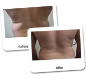 Men Liposuction Before & After Photos (6)