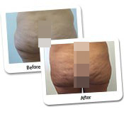 Mega Liposuction Before And After Photos (10)