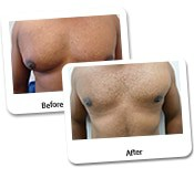Man Breast Reduction Before & After Photos (14)
