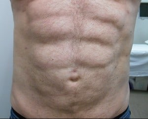 Vaser Liposuction Male After Photo