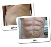 Vaser Liposuction Before And After Photos (12)