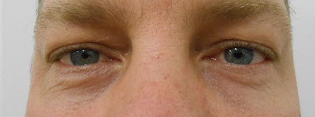 blepharoplasty after picture