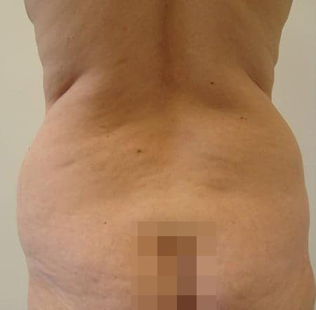 Hip Liposuction Before Photos