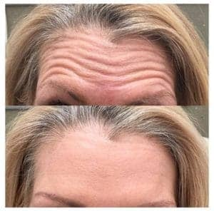Wrinkle Injection With Relaxants 2
