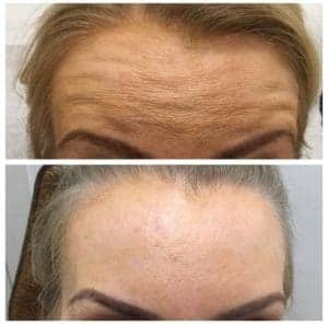 Wrinkle Injection With Relaxants 3