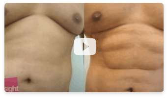 Liposuction Video 2