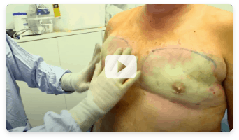 Liposuction Video 4