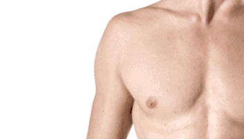 What Is The Gynecomastia Surgery Cost In 2021?