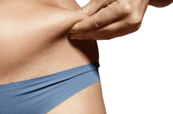 What Is Liposuction Used for?