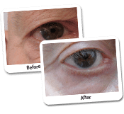 The Blepharoplasty For Men Case Study