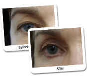 Eyelid Surgery In Women Case Study