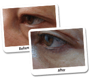 Eyelid Surgery Before & After Photos (3)