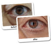Eyelid Surgery Before & After Photos (5)