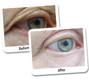 Eyelid Surgery Before & After Photos (6)