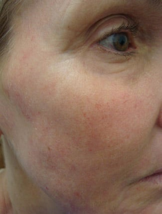 Face Laser Resurfacing After Photo
