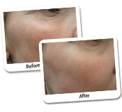Face Laser Resurfacing Before & After Photos (3)
