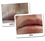 Face Lift Laser Resurfacing Before & After Photos (3)