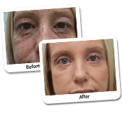 Face Makeover Before & After Photos (4)