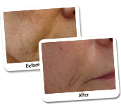 Fat Transfer Before & After Photos (1)