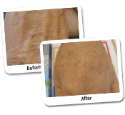 Fat Transfer Before & After Photos (4)
