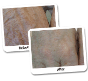 Fat Transfer Before & After Photos (6)