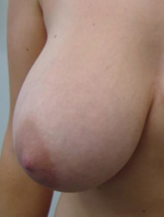 Female Breast Reduction Before Photos (1)