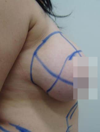 Female Breast Reduction BeforePhotos