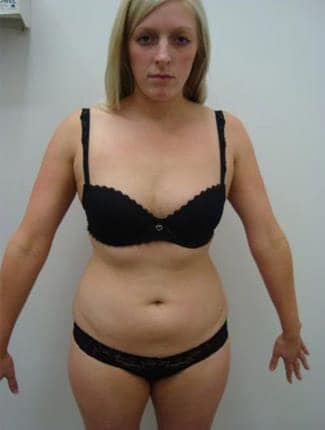 female liposuction