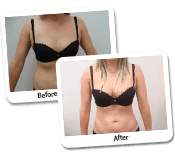 Hi Definition Liposuction On Females