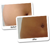 Achieve a flattering body figure with Liposuction