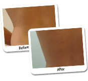 Hip liposuction for women