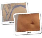 Female Liposuction On Mid-Section