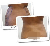 Female Liposuction Before & After Photos (8)