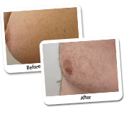 Man Breast Reduction Before & After Photos (1)
