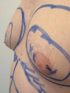 Gynaecomastia surgeon for the procedure