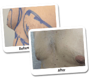 Man Breast Reduction Before & After Photos (2)