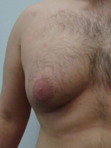 Gynaecomastia Treatment Procedure