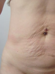 mega liposuction Brisbane