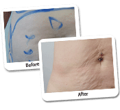 Mega Liposuction Before And After Photos