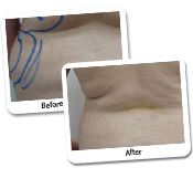 Mega Liposuction Procedures Before and After Photos (3)