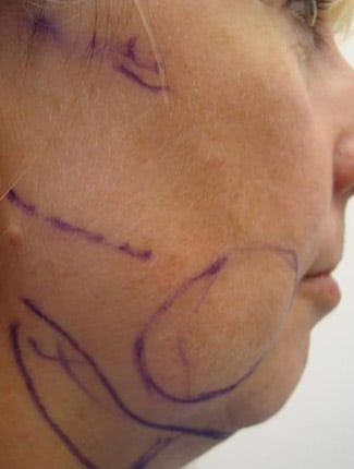 Neck Liposuction Before Photos (2)