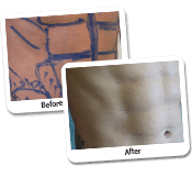 Vaser Liposuction Gallery