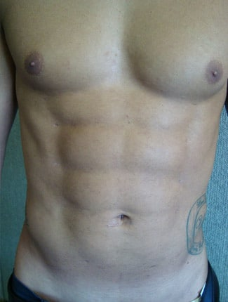 Vaser Liposculpture Before and After